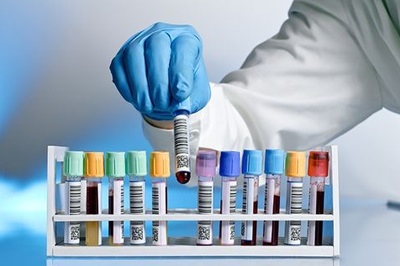 Testele genetice în sarcină